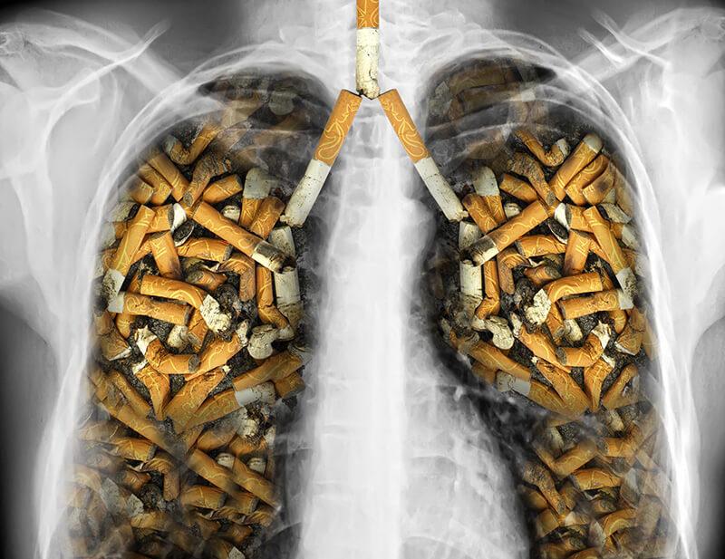Røykerelaterte dødsfall Helsemagasinet vitenskap og fornuft